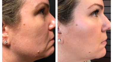 Kybella Chin Reduction