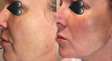 Kybella Chin Reduction